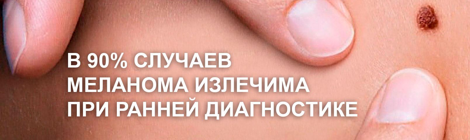 В 90% случаев меланома излечима при ранней диагностике